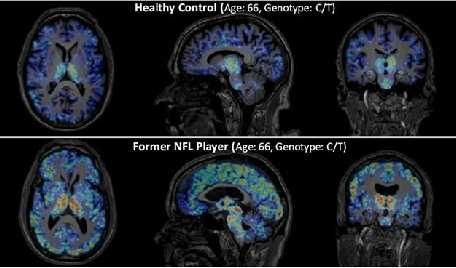 nfl players and chronic traumatic encephalopathy Findings add to mounting evidence of connection between concussions and the  neurodegenerative disease cte.
